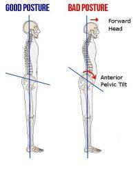pravilna-postura
